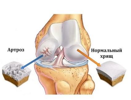 Артроз суставов – болезнь костей, которая медленно разрушает хрящи внутри сустава