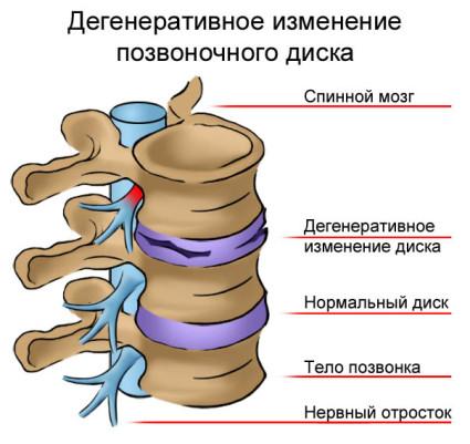 Хрящевая ткань позвоночника не получает необходимых веществ, становится тонкой, неэластичной