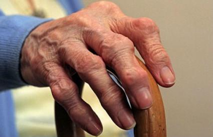 Артроз рук приводит к нарушениям функций кисти