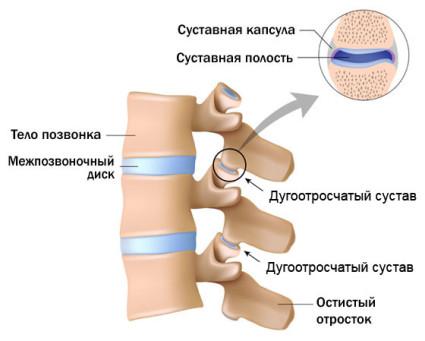 Источником болей в спине может быть такое заболевание, как артроз дугоотросчатых суставов позвоночник