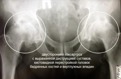 Развиться клиника может с одной или с двух сторон, что намного сложнее - так это двухсторонний коксартроз