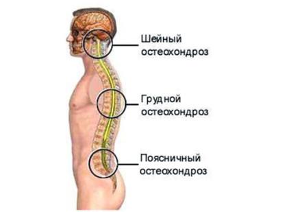 Остеохондроз шейного отдела имеет несколько позиций