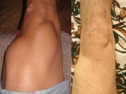 Основным признаком такой болезни, как гемартроз коленного сустава, является кровоизлияние