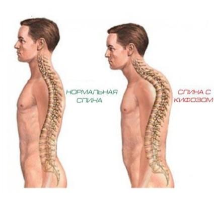 Нормальная спина и спина с кифозом