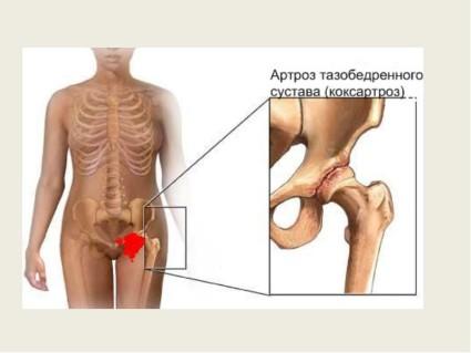 Основные причины – это нарушение метаболизма в синовиальной жидкости