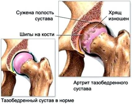 Существуют определенные общие симптомы артроза тазобедренных суставов, которые появляются по мере развития заболевания