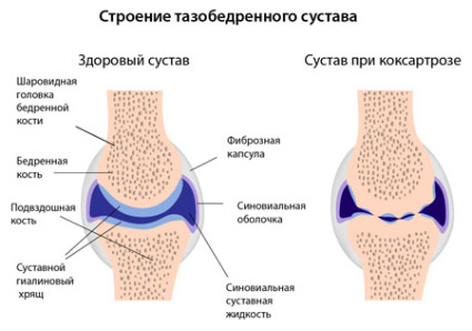 Здоровый тазобедренный сустав и сустав при коксартозе