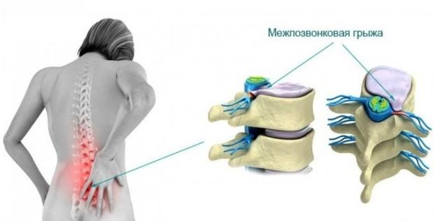 Межпозвоночная грыжа - симптомы и причины ее возникновения могут быть разными
