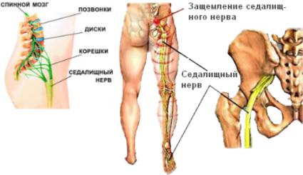 Седалищный нерв представляет собой крупный пучок нервных волокон, которые отходят от крестцового и поясничного отделов позвоночника