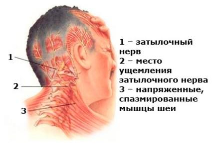 Симптомы невралгии проявляются в виде сильной боли в области шеи