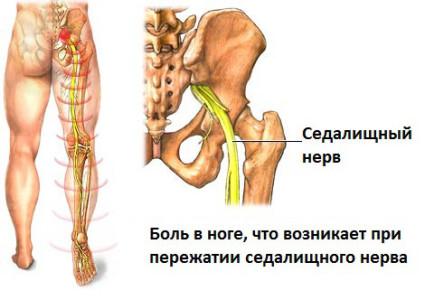 Боль в ноге возникает при пережатии седалищного нерва