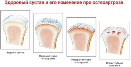 Здоровый сустав и его изменения при остеоарторе
