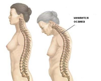 При остеопорозе меняется осанка