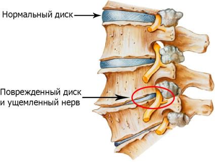 Больше всего проблем человеку доставляют симптомы шейного остеохондроза