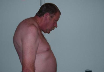 Болезнь Бехтерева - опасное заболевание, встречающееся преимущественно у мужчин