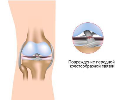 Главной причиной болезни врачи называют травмы колена