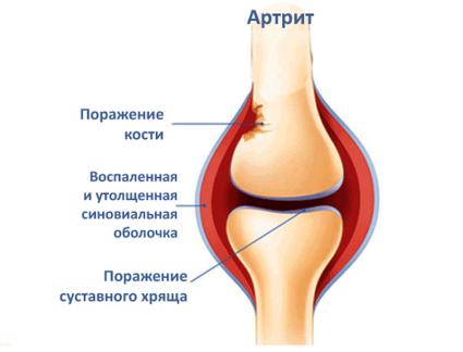 Поражённый артритом сустав