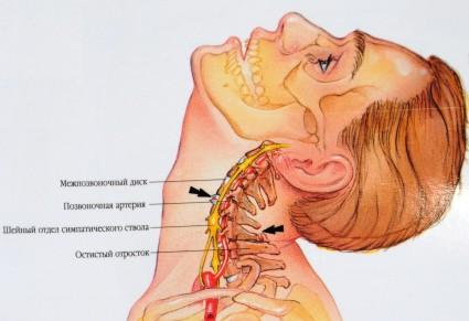 Анатомия шейных позвонков