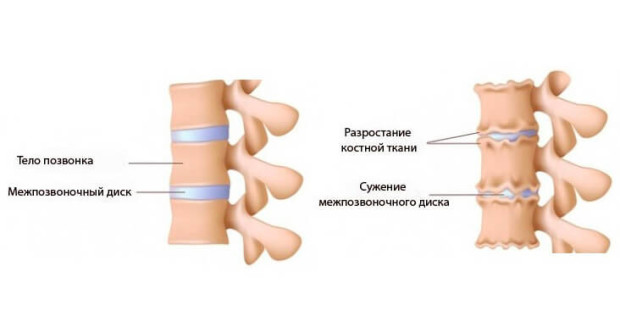 лечение остеохондроза позвоночника медикаменты