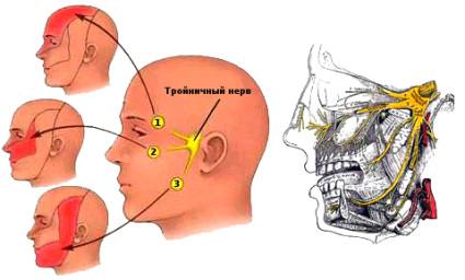Причин воспаления тройничного нерва много