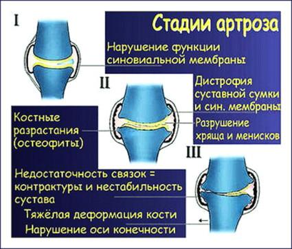 Остеоартроз колена 2 стадии может привести к опухоли