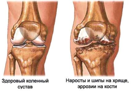 Гонартроз - называют деформирующим остеоартрозом обоих коленных суставов
