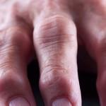 Фаланги пальцев, пораженные болезнью