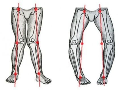 Гонартроз 3 степени может проявляться в виде Х-образной либо же О-образной деформации коленного сустава