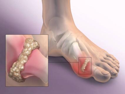 При движении в районе стопы возникает острая боль