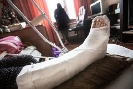 Малоберцовая кость при повреждении нуждается в срочной терапии