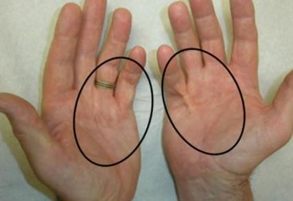 Контрактура суставов рук связана с ограничением их подвижности
