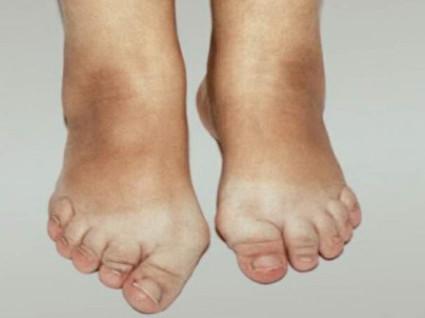 Артроз таранно-ладьевидных суставов стоп
