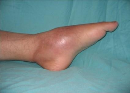 Симптомы отличаются от других заболеваний суставов и кости тем, что развиваются очень стремительно