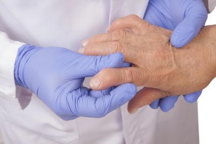 При второй стадии артрита наблюдается возникновение легкого хрящевого и костного разрушений