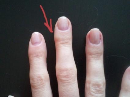 Утолщения костной ткани, которые появляются на фалангах, делятся на два вида