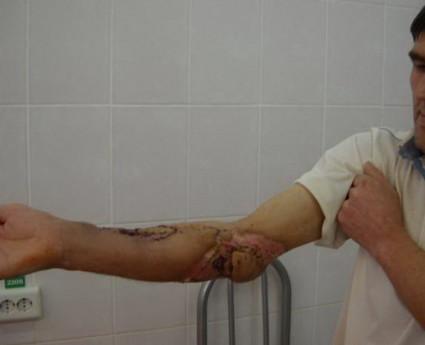 Остеомиелит локтевого сустава