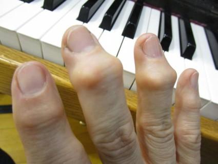 Остеоартроз кистей рук поражает межфаланговые суставы и запястья руки