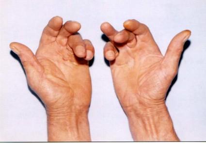 Третья и четвертая степени болезни Дюпюитрена более тяжелые по клиническому течению