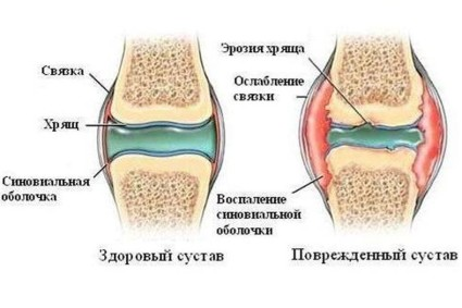Классификация разделяет коксартроз на 3 степени проявления