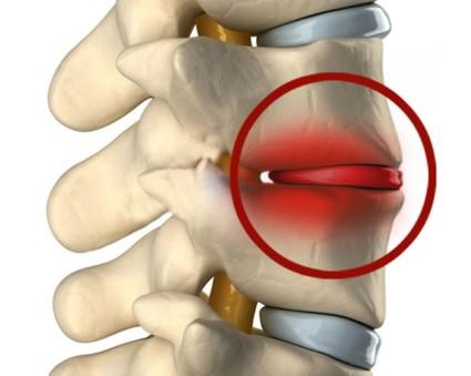 Проявления остеохондроза основаны на том, что сужаются межпозвоночные отверстия