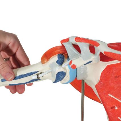 Прогрессирование импиджмент-синдрома приводит к полной невозможности осуществлять движения рукой