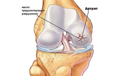 Артрит способен поражать не только один сустав, а целую группу, в частности, конечности