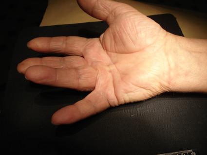 Болезнь Дюпюитрена - тугоподвижность рук,наиболее часто встречается контрактура кисти и пальцев