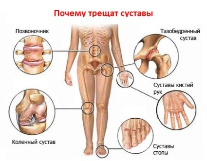 И при артрозе, и при артрите происходит суставное поражение