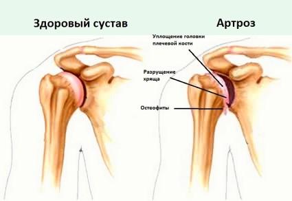 Плечевые суставы не часто поражаются артрозом