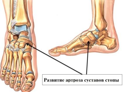 Таранно-ладьевидного артроза является следствием перенесенных травм стопы или голеностопа