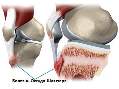 Состояние, при котором наступает разрушение бугристости, где расположено ядро большеберцовой кости, носит название Осгуда Шлаттера