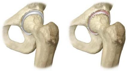 Пораженный бедренный сустав