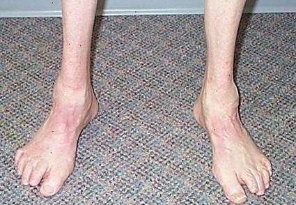 Симптомы урогенитальной инфекции