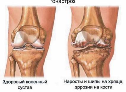 Заболевание коленного сустава, при котором происходит разрушение суставного хряща